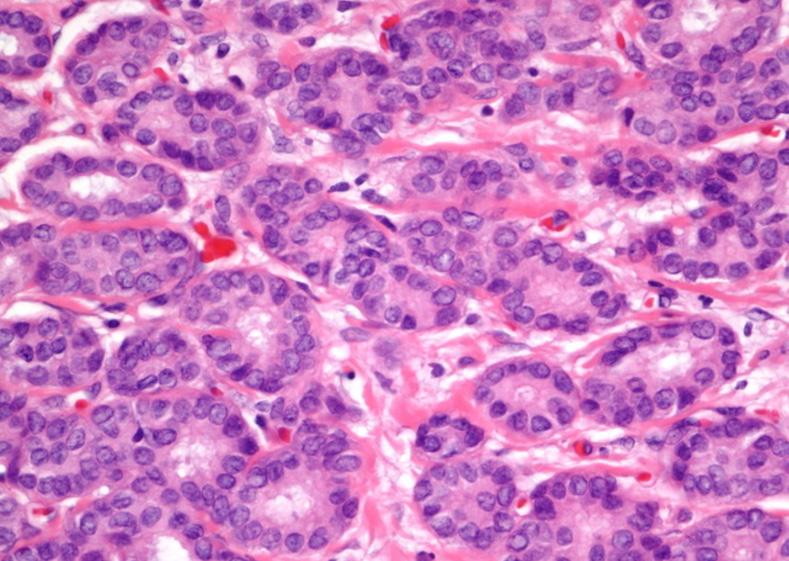 Breast Cancer Progression
