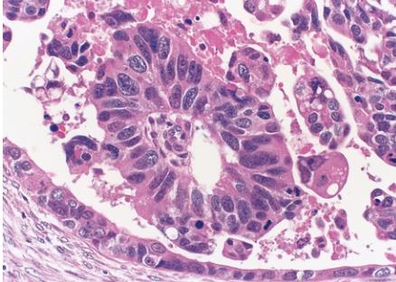 Ovarian Cancer Slide
