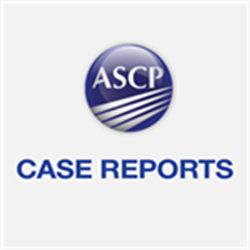 Case Reports Microbiology 2019 Exercise 3: False-Positive Result on an HIV Molecular Test in a Patient Receiving  CAR T-Cell Therapy (CSMB1903)