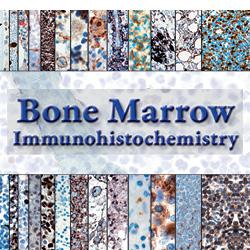Bone Marrow Immunohistochemisty and Molecular Pathology