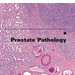 Prostate Pathology