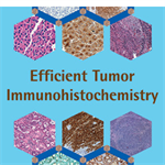 Efficient Tumor Immunohistochemistry: A Differential-Diagnosis-Driven Approach